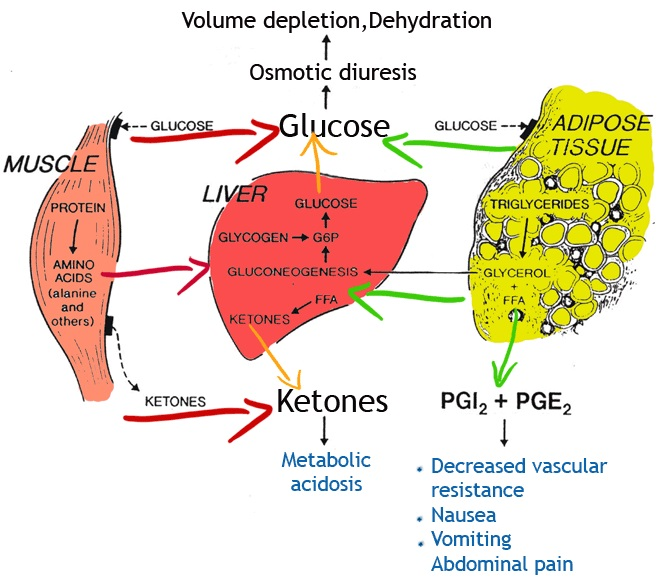 Diabetic Ketoacidosis: Principles behind Protocols – Supported by ...