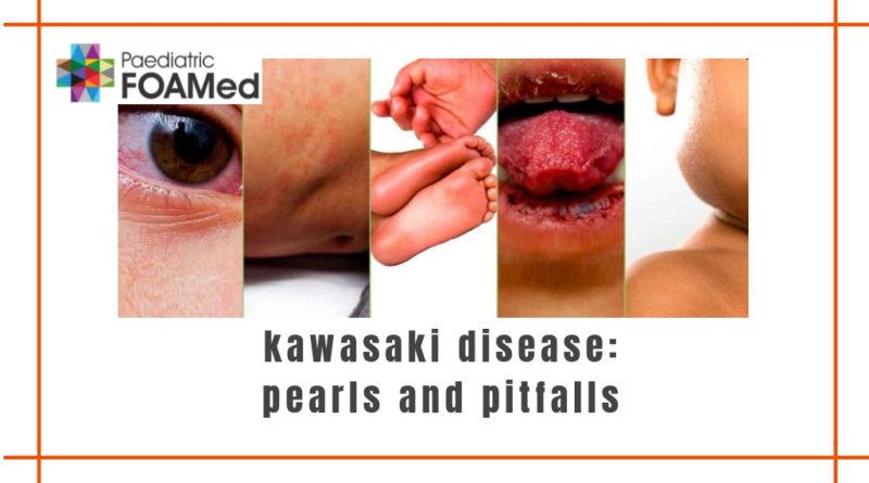 Kawasaki Disease - Pearls and Pitfalls - Paediatric Foam